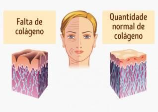Colagénio, retarda o envelhecimento?