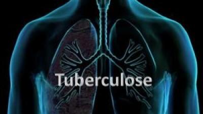 Identificado mecanismo molecular com potencial para fármacos contra tuberculose